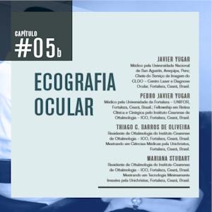 ecografiaocular